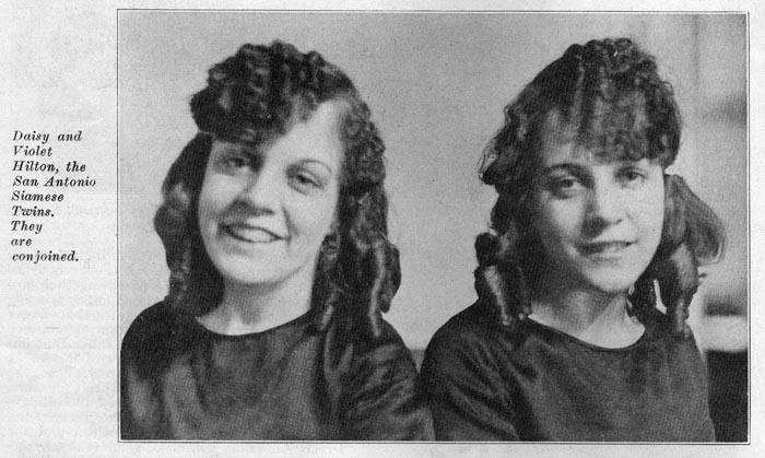 Image of Violet and Daisy Hilton